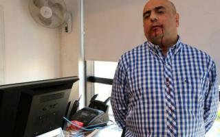 Casalongue, de Nova, golpeado por De Narváez tras publicar polémica nota.