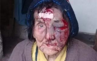 La víctima de 83 años fue brutalmente golpeada.