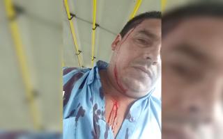 """Balearon a chofer de """"La Perlita"""" en Moreno y los colectivos no funcionaban"""