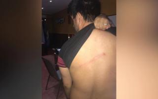 Lucas Córdoba recibió un fierrazo por la espalda.