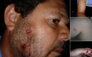 Denuncian represión contra hinchas de Temperley tras partido con Quilmes. Foto: @EstiloTemperley