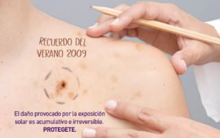 Campaña contra el cáncer de piel en Provincia: Controles gratuitos hasta el 22 de noviembre