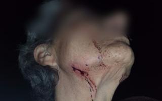 Brutal ataque de pitbulls a una mujer en Mar del Plata. Foto: Prensa