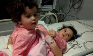 Separación de las siamesas Bianca y Luciana Fernández, de 14 meses.