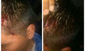 Así terminó el chofer tras el ataque. Foto: LaNoticia1