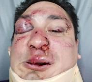 """Barrabravas de """"La Guardia Imperial"""" atacaron al periodista Sebastián Acosta."""