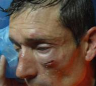 El árbitro Claudio Elichiri resultó brutalmente agredido.