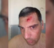 Violencia en el fútbol: Árbitro agredido en una liga barrial de Punta Alta