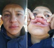 """Quilmes: Un pasajero denunció que chofer de colectivo lo golpeó por tener el barbijo """"mal colocado"""" (Medios del Sur - Infoquilmes)"""