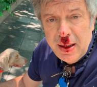 D'Alessandro resultó herido al accidentarse con su perro.