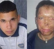 Antes y hoy: esta fue la transformación que logró hasta la fecha Nahuel, después de mas de 20 cirugías reparadoras.